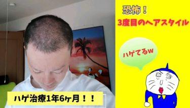ハゲ日記1年6ヶ月!ヤバイ!!(3度目の脱毛?)ヘアサイクルなのか?ハゲなのか?